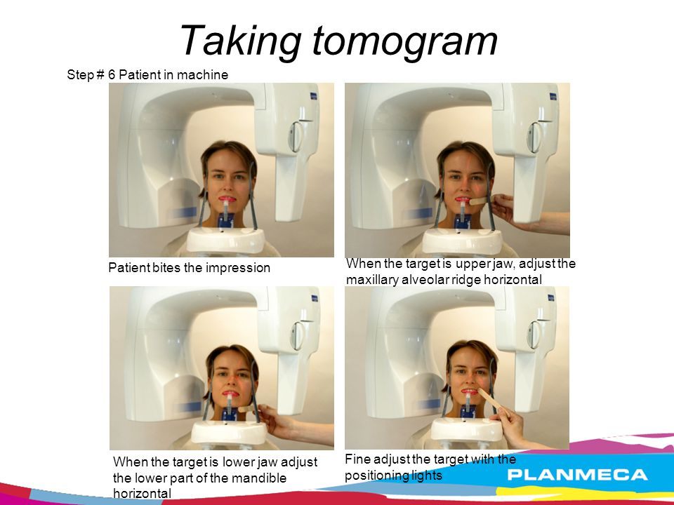 Taking tomogram Step # 6 Patient in machine