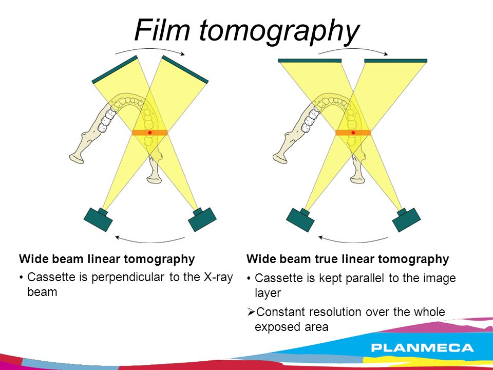 Film tomography Wide beam linear tomography