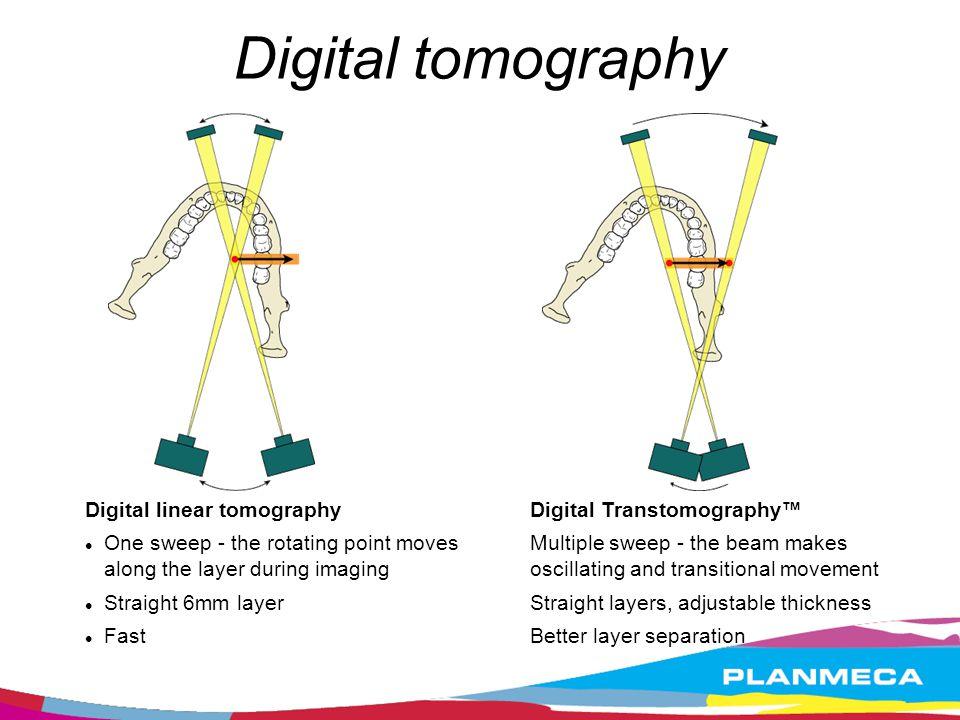 Digital tomography Digital linear tomography