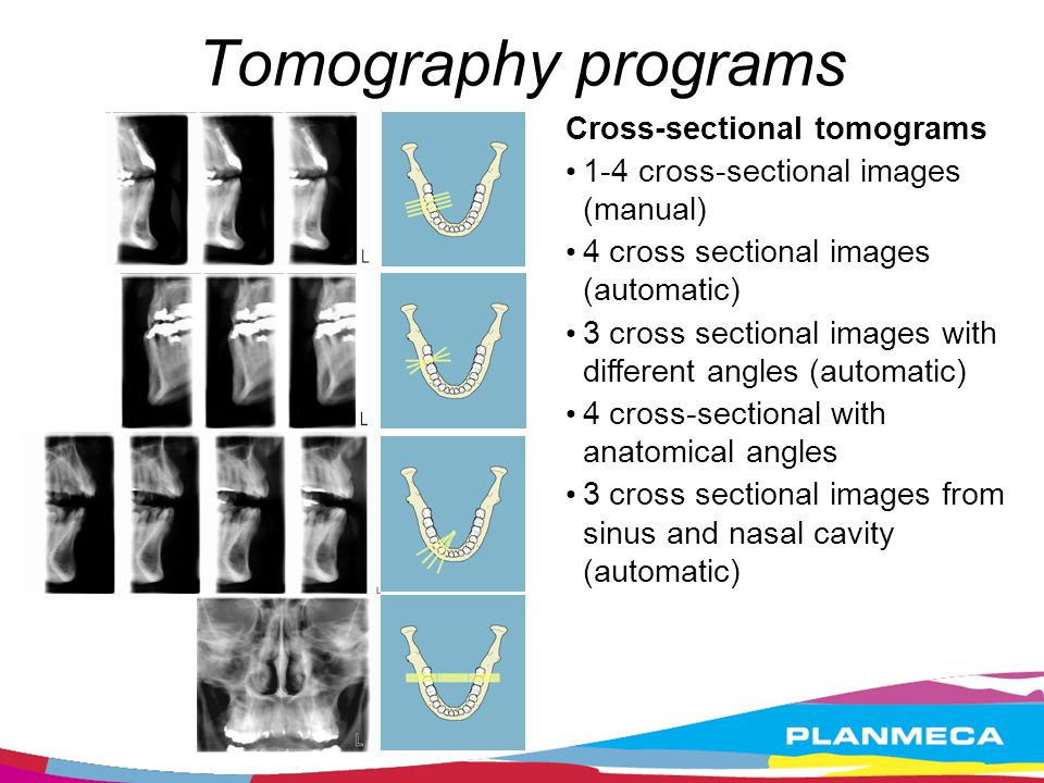 Tomography programs Cross-sectional tomograms. 1-4 cross-sectional images (manual)‏ 4 cross sectional images (automatic)‏