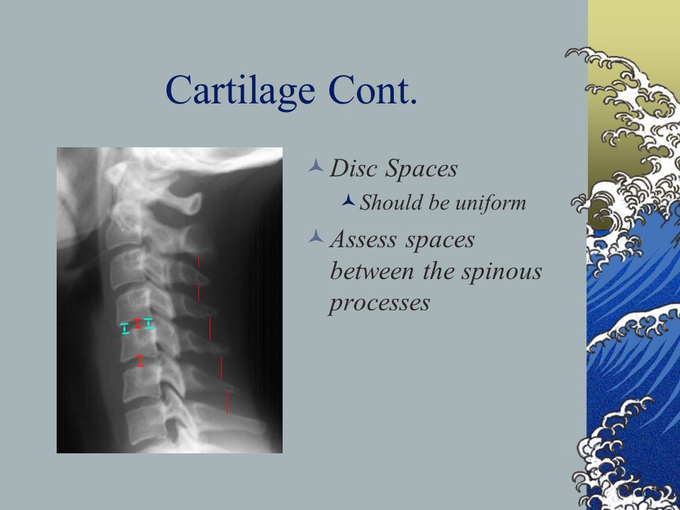 Cartilage Cont. Disc Spaces