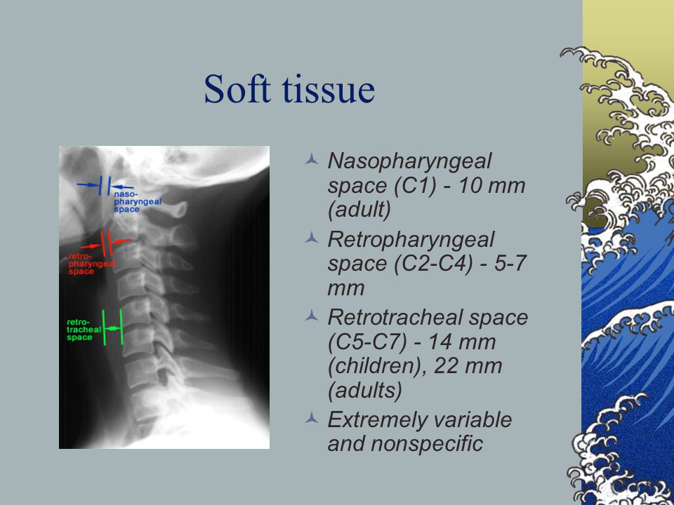 Soft tissue Nasopharyngeal space (C1) - 10 mm (adult)