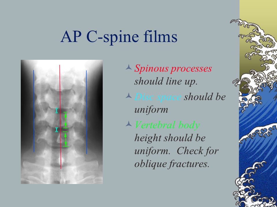 AP C-spine films Spinous processes should line up.