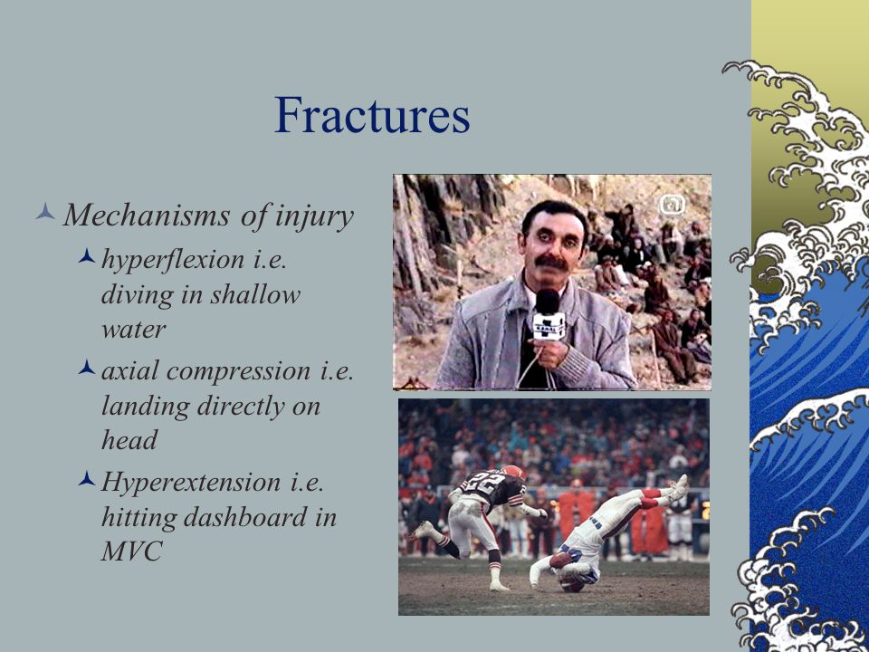Fractures Mechanisms of injury