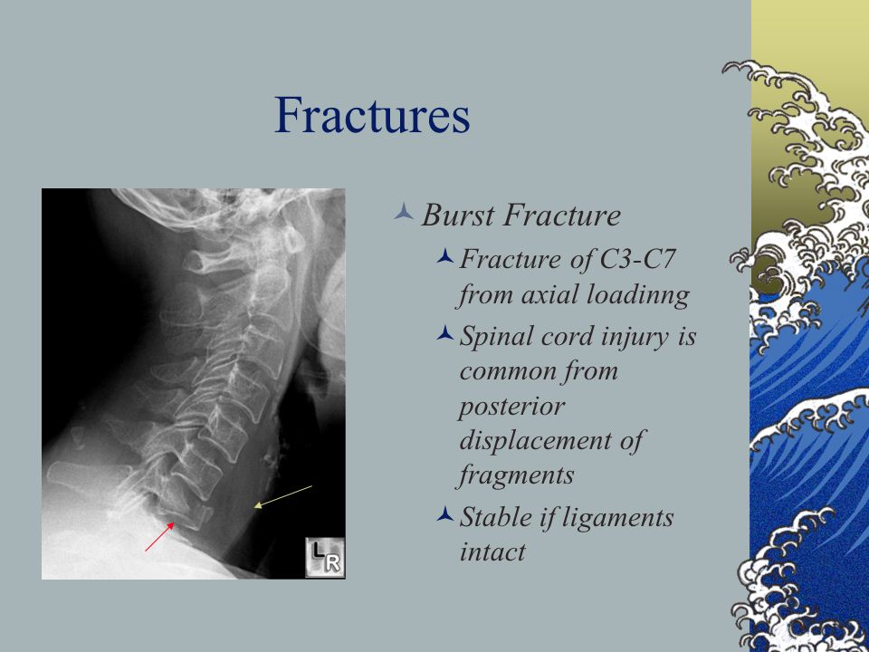 Fractures Burst Fracture Fracture of C3-C7 from axial loadinng