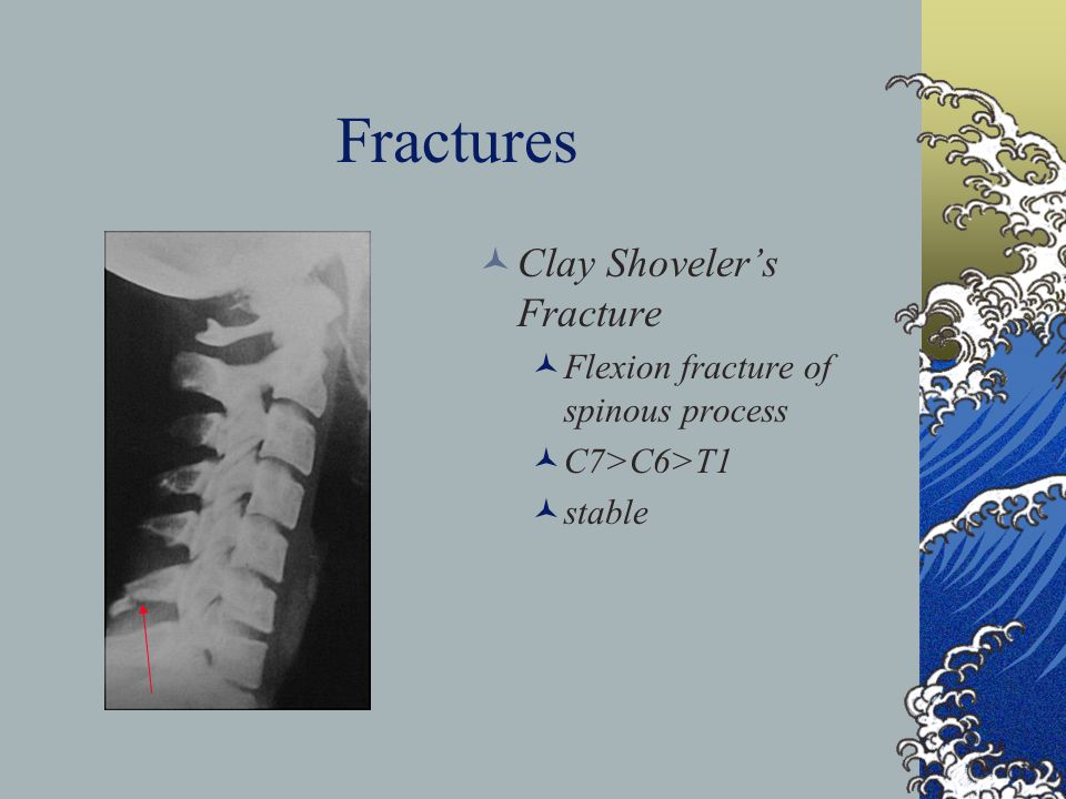 Fractures Clay Shoveler's Fracture Flexion fracture of spinous process