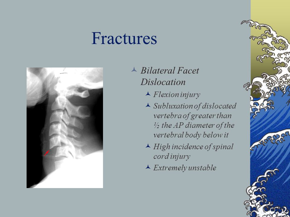 Fractures Bilateral Facet Dislocation Flexion injury
