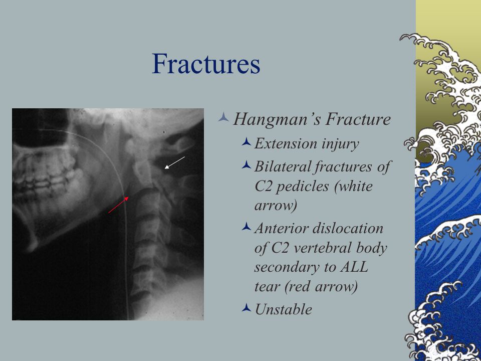 Fractures Hangman's Fracture Extension injury