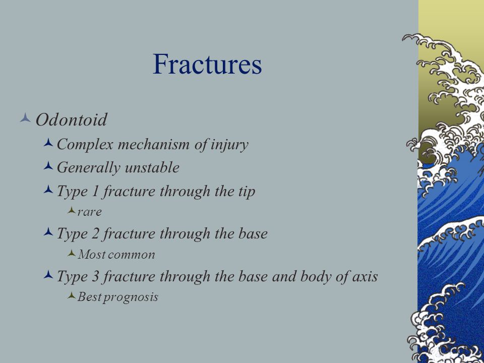 Fractures Odontoid Complex mechanism of injury Generally unstable