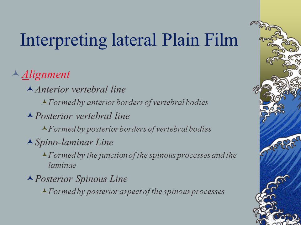 Interpreting lateral Plain Film