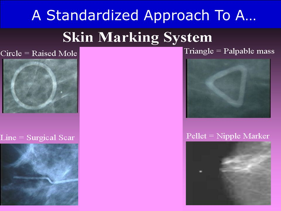A Standardized Approach To A…