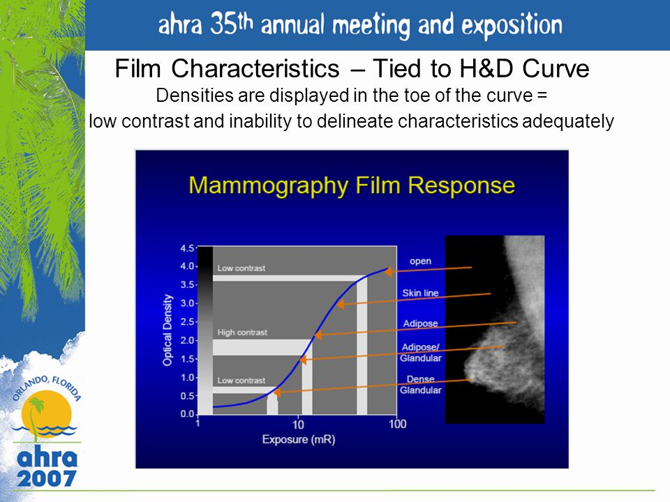 Film Characteristics – Tied to H&D Curve Densities are displayed in the toe of the curve = low contrast and inability to delineate characteristics adequately