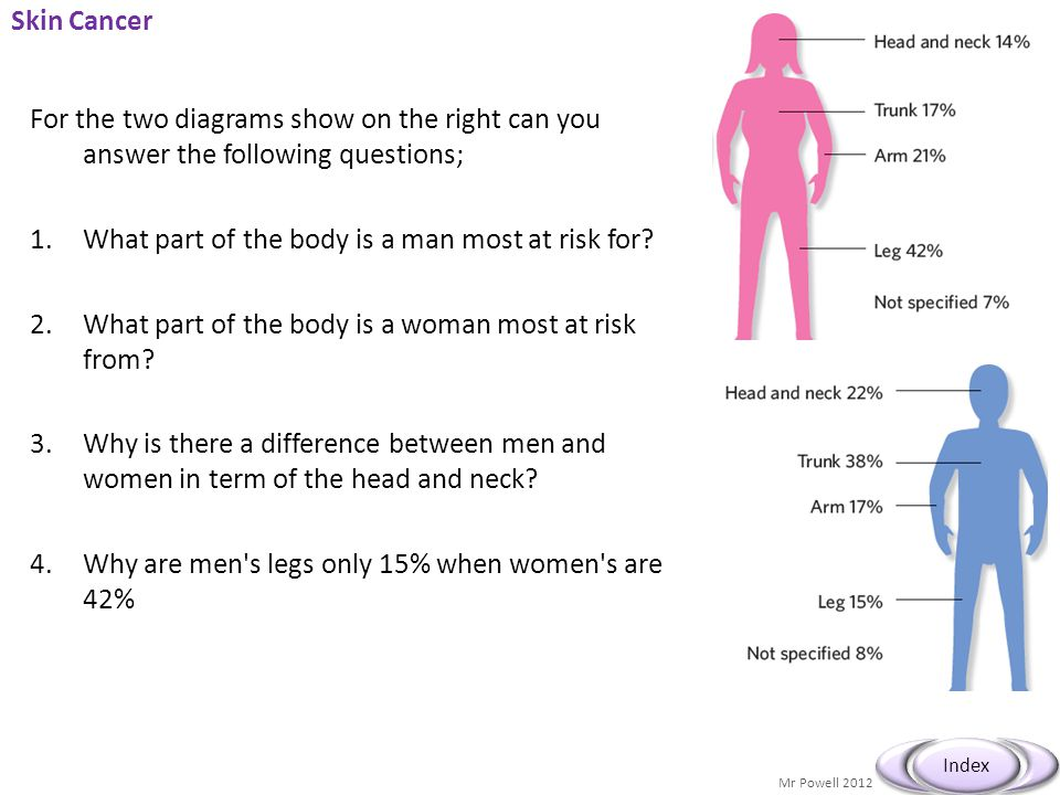 Skin Cancer For the two diagrams show on the right can you answer the following questions; What part of the body is a man most at risk for