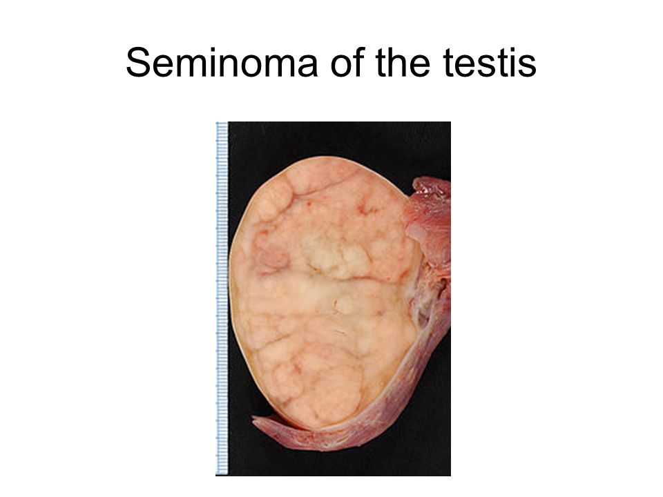 Seminoma of the testis
