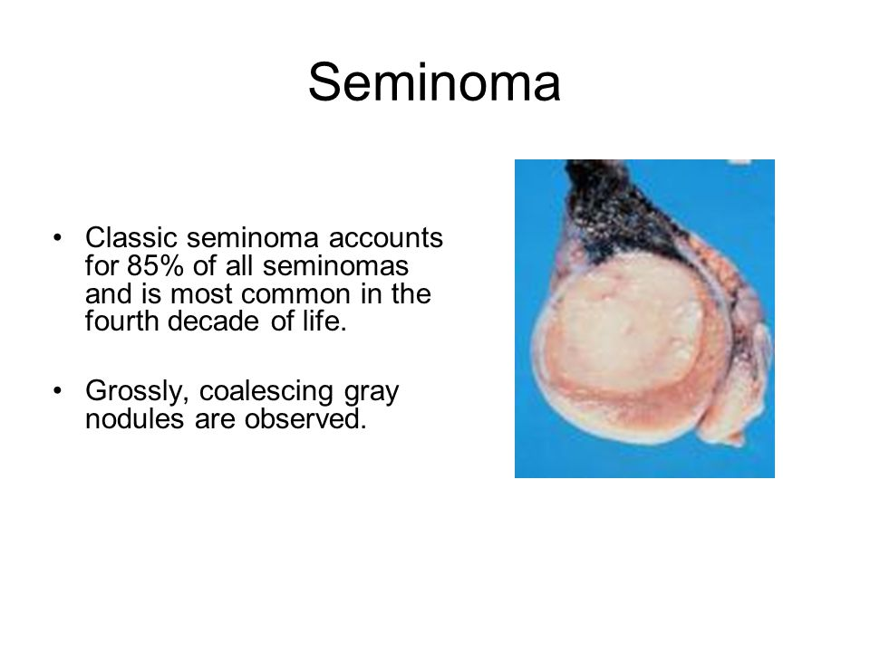 Seminoma Classic seminoma accounts for 85% of all seminomas and is most common in the fourth decade of life.