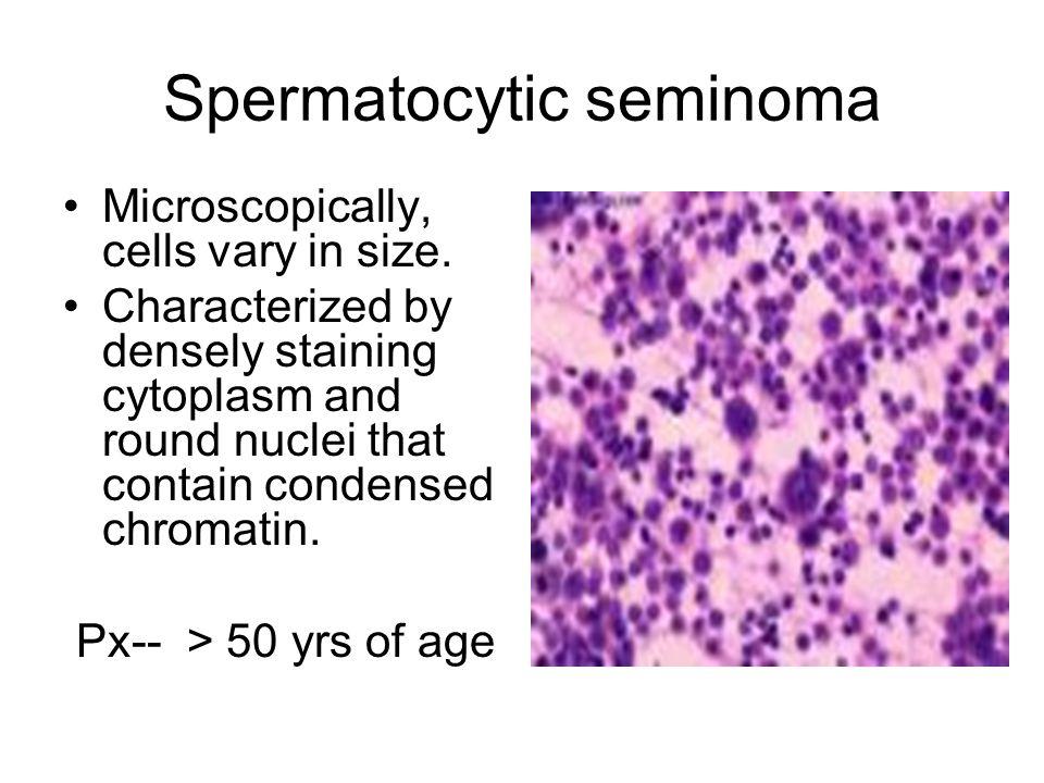 Spermatocytic seminoma