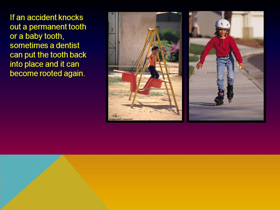 If an accident knocks out a permanent tooth. or a baby tooth, sometimes a dentist.