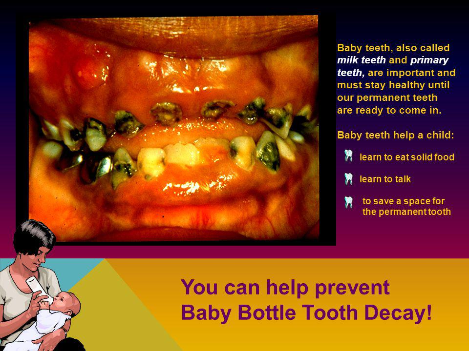 Baby Bottle Tooth Decay!