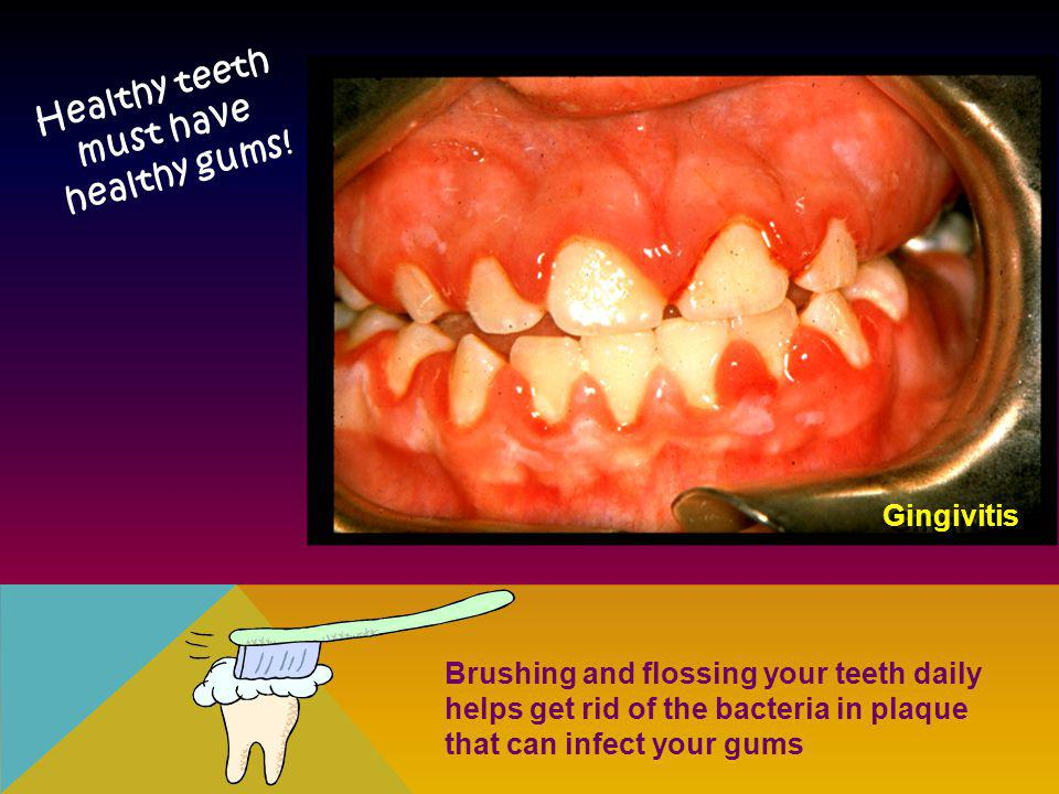 Healthy teeth must have healthy gums!