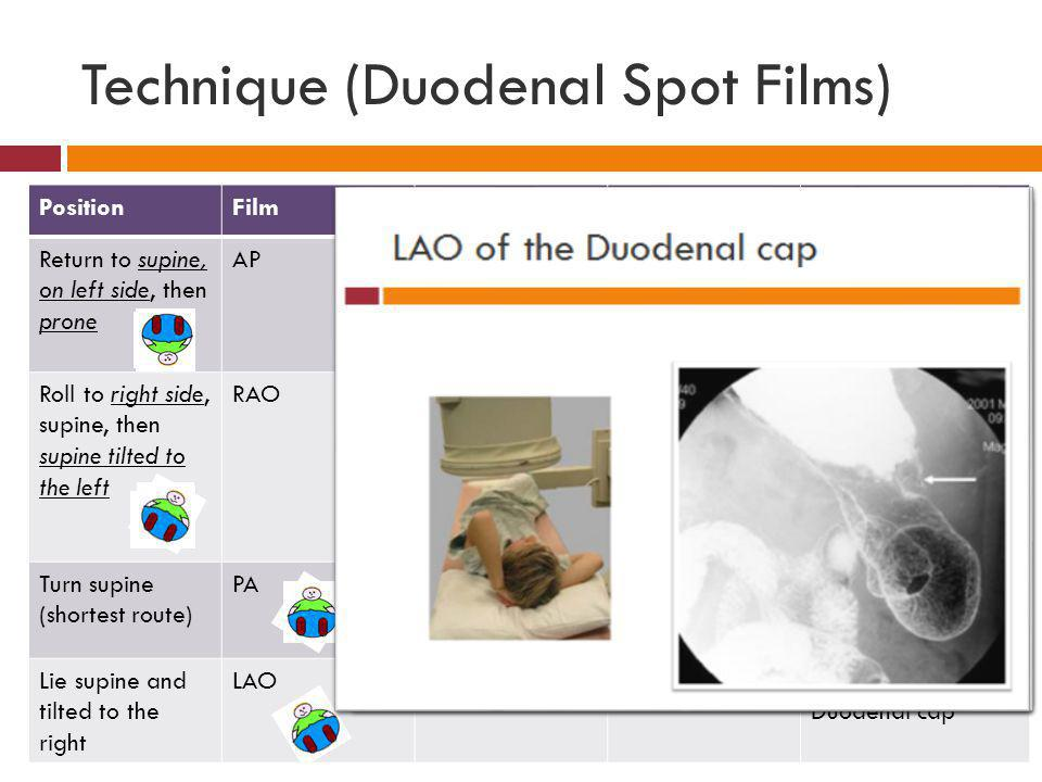 Technique (Duodenal Spot Films)
