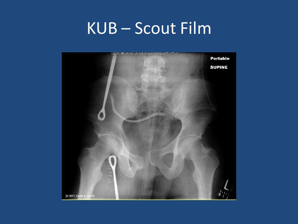 KUB – Scout Film