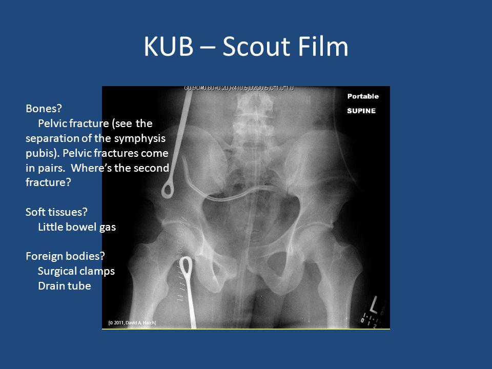 KUB – Scout Film Bones Pelvic fracture (see the separation of the symphysis pubis). Pelvic fractures come in pairs. Where's the second fracture