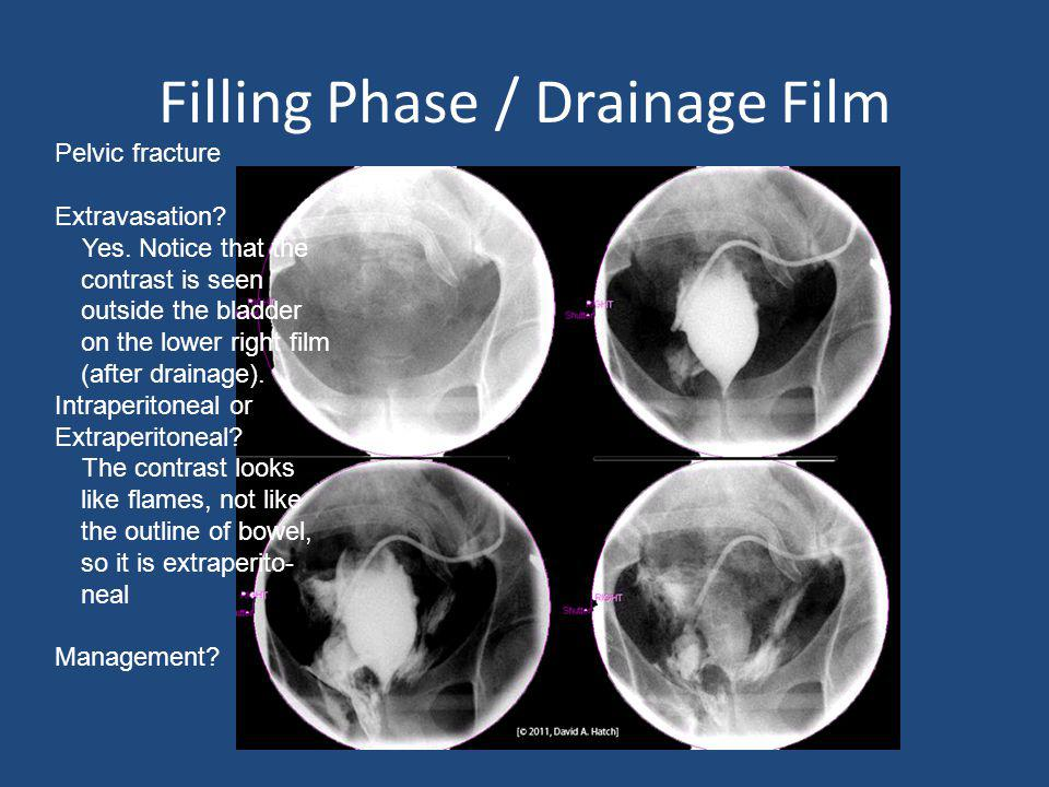 Filling Phase / Drainage Film