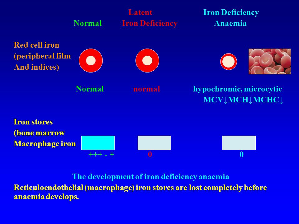 Latent Iron Deficiency Normal Iron Deficiency Anaemia Red cell iron (peripheral film And indices) Normal normal hypochromic, microcytic MCV↓MCH↓MCHC↓ Iron stores (bone marrow Macrophage iron +++ - + 0 0 The development of iron deficiency anaemia Reticuloendothelial (macrophage) iron stores are lost completely before anaemia develops.