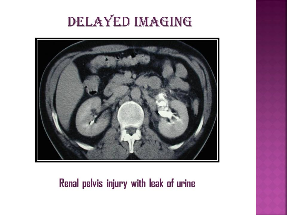 Renal pelvis injury with leak of urine