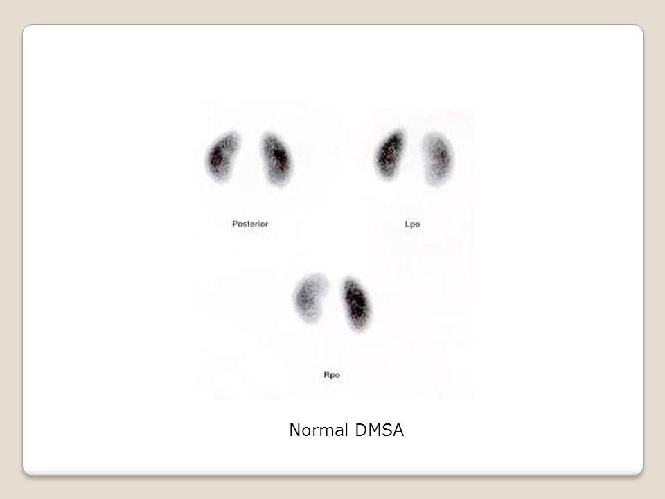 Normal DMSA