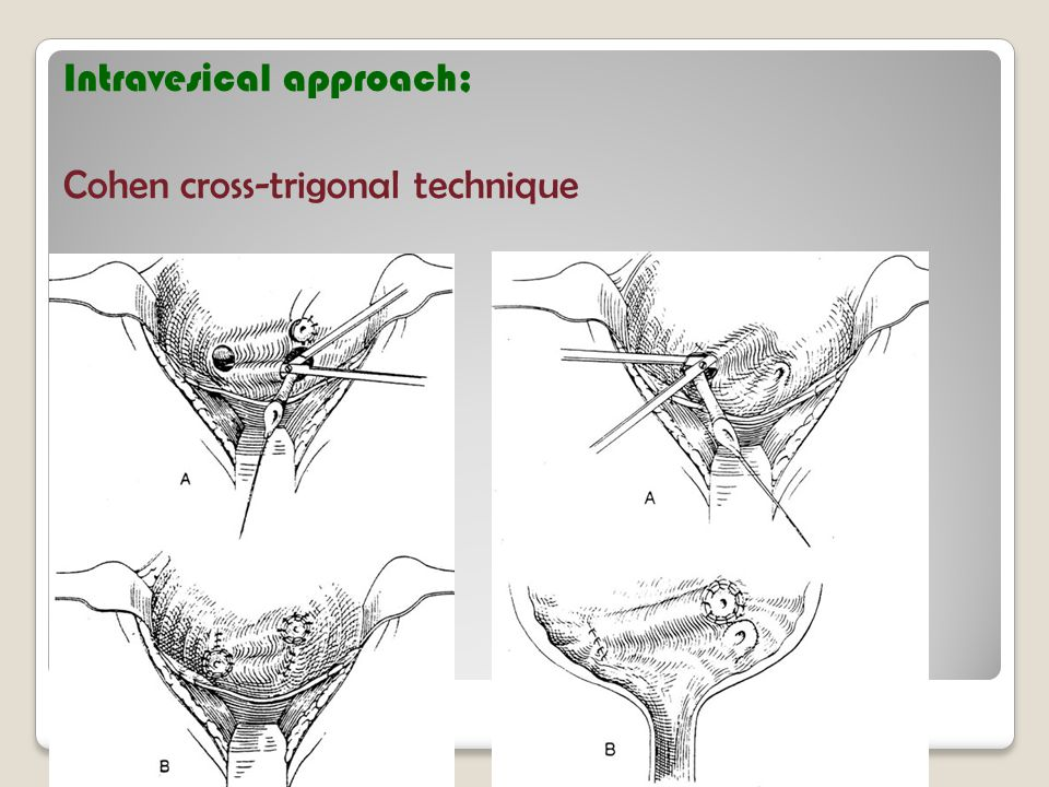 Intravesical approach; Cohen cross-trigonal technique