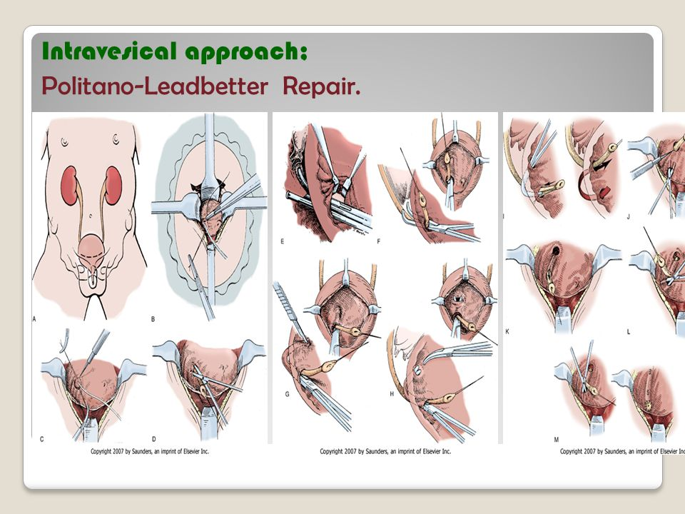 Intravesical approach; Politano-Leadbetter Repair.