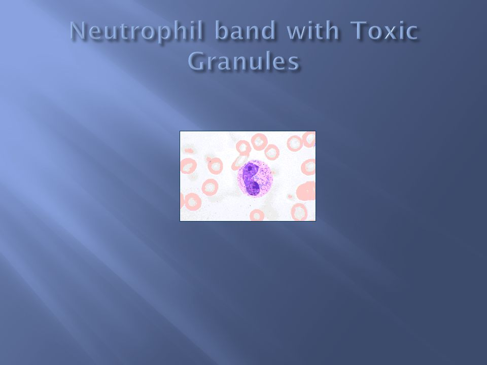 Neutrophil band with Toxic Granules
