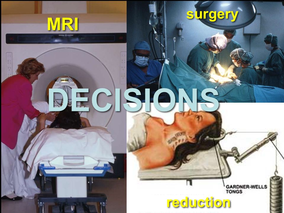 MRI surgery DECISIONS reduction