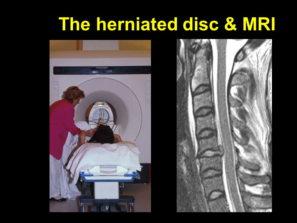 The herniated disc & MRI