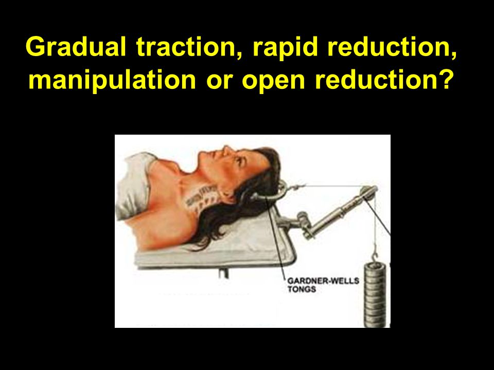 Gradual traction, rapid reduction, manipulation or open reduction