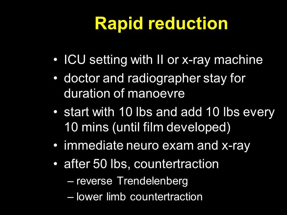 Rapid reduction ICU setting with II or x-ray machine