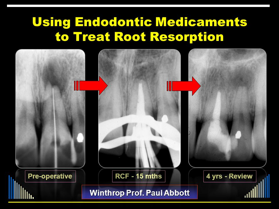 Using Endodontic Medicaments to Treat Root Resorption