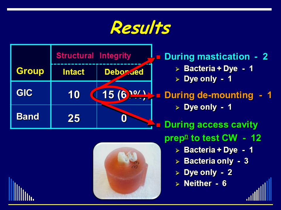 Results 10 15 (60%) 25 Group GIC During mastication - 2 Band