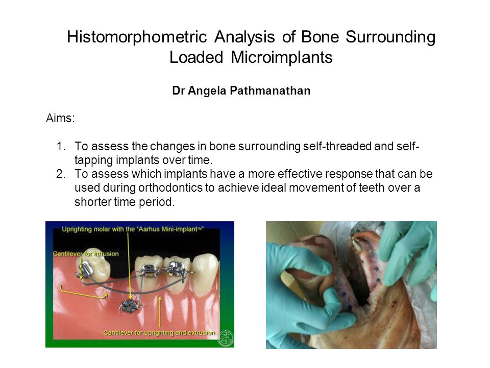 Histomorphometric Analysis of Bone Surrounding Loaded Microimplants