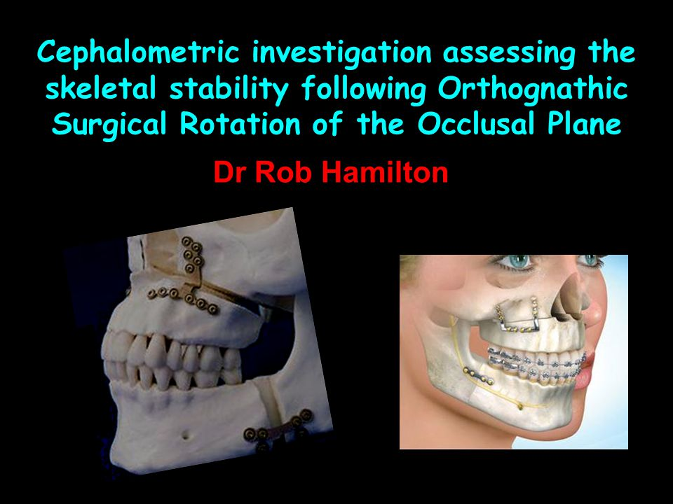 Cephalometric investigation assessing the skeletal stability following Orthognathic Surgical Rotation of the Occlusal Plane
