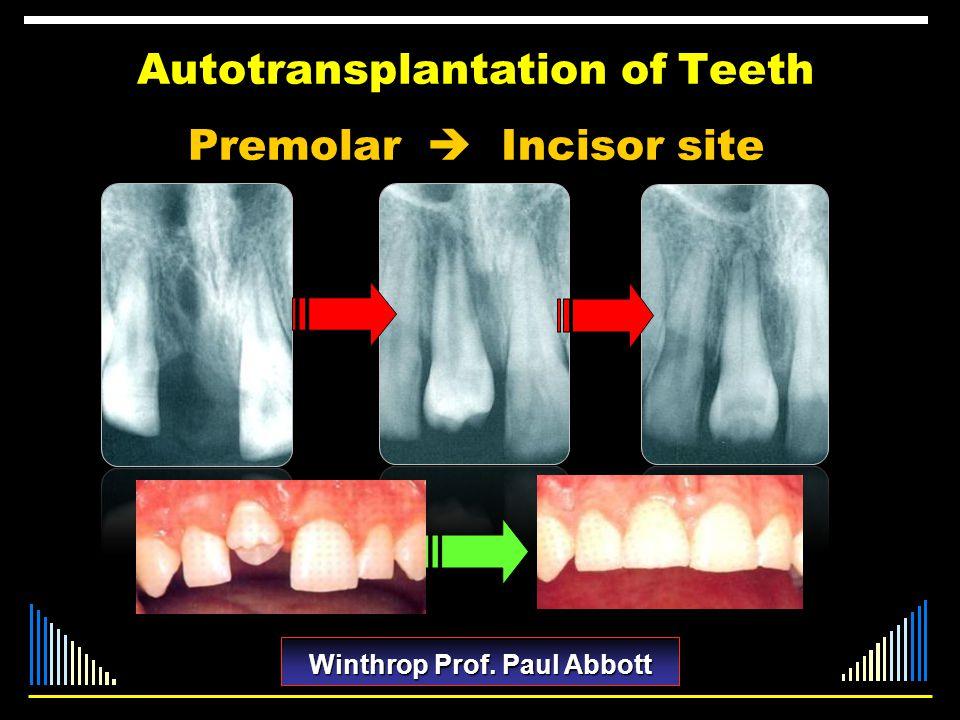 Autotransplantation of Teeth Premolar  Incisor site