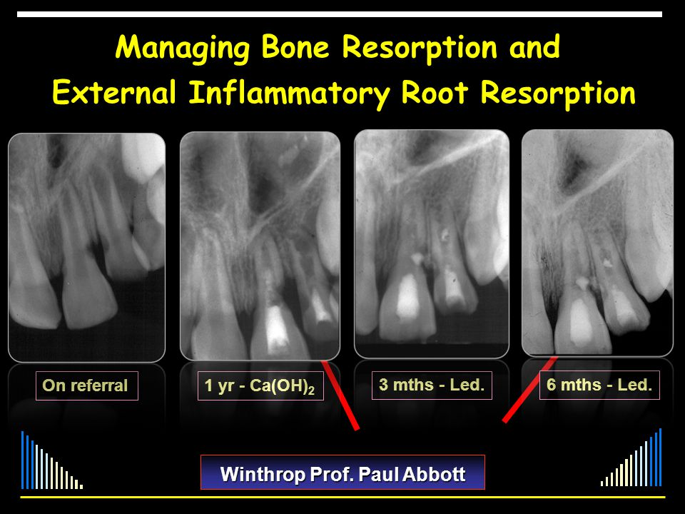 Managing Bone Resorption and External Inflammatory Root Resorption