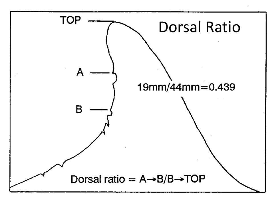 Dorsal Ratio