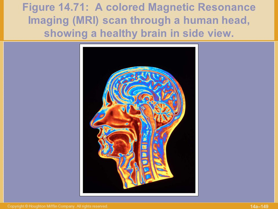 Figure 14.71: A colored Magnetic Resonance Imaging (MRI) scan through a human head, showing a healthy brain in side view.