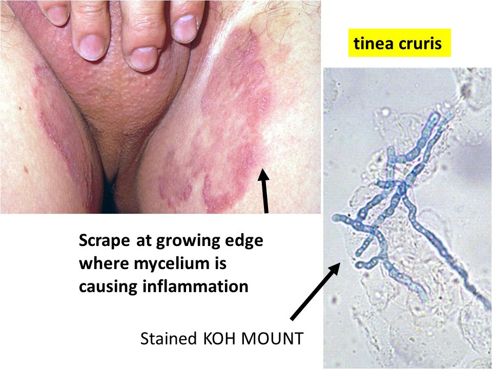 Scrape at growing edge where mycelium is causing inflammation