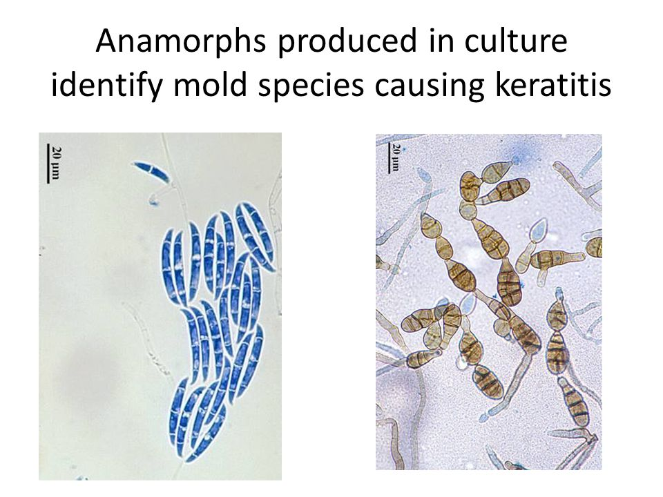 Anamorphs produced in culture identify mold species causing keratitis