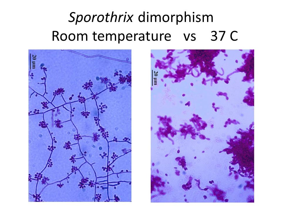 Sporothrix dimorphism Room temperature vs 37 C