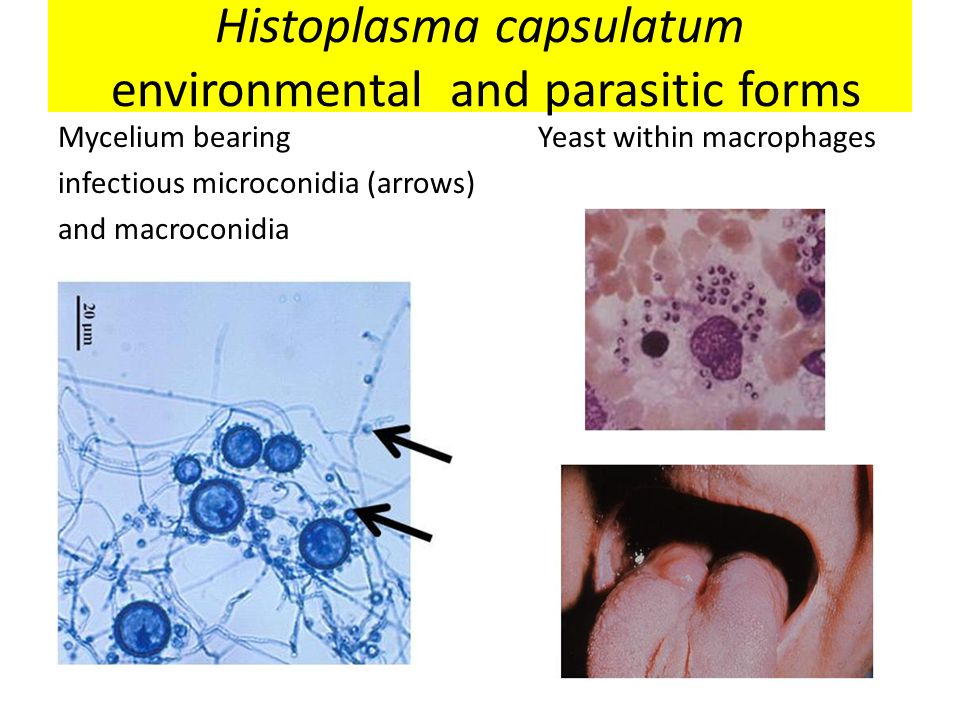 Histoplasma capsulatum environmental and parasitic forms