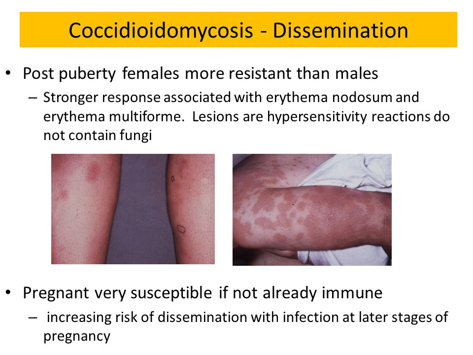 Coccidioidomycosis - Dissemination